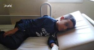 """طفل مصاب بالتهاب الكبد في مشفى """"هاند إن هاند"""" في أطمه بريف إدلب"""