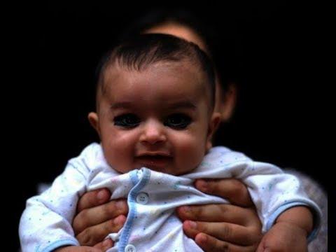 الكحل في عيون أحد الأطفال حديثي الولادة - المصدر: Google